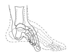 Diagrama de cómo se deformaban los huesos